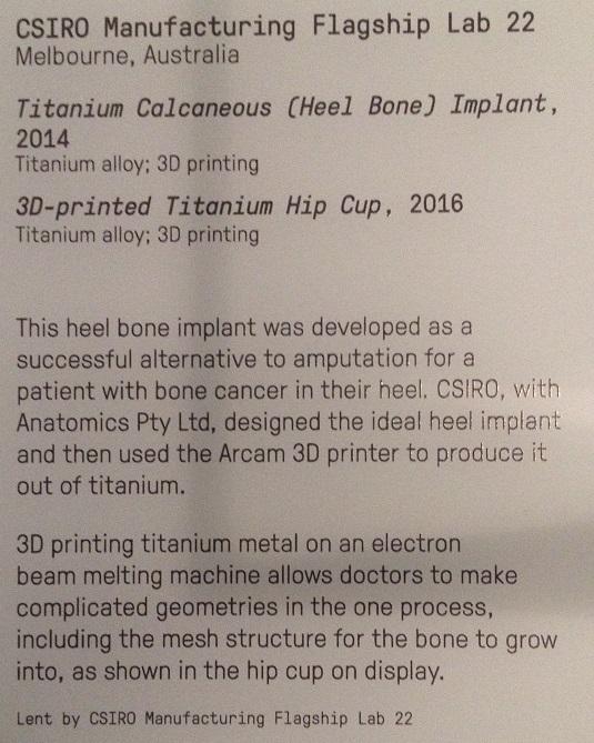 3d-printed-hipcup-2